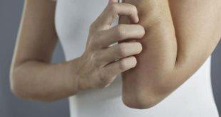 Neurodermitis – Fahrplan für ein besseres Hautbild
